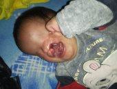 استجابة لـ اليوم السابع.. وزيرة الصحة تأمر بعلاج طفلة مصابة بتشوهات خلقية