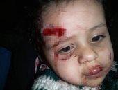 فيديو.. كلب يهاجم طفلة عمرها عام ونصف ويعقرها بشبرا مصر