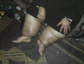 """صور.. معاناة """"كريمة"""" بكفر الشيخ.. أقعدها المرض ولا تستطيع توفير علاجها"""