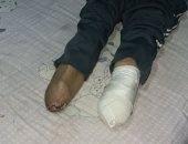 صور.. قارئ يناشد بتركيب طرف صناعى لفقدانه قدميه بعد نجاته من حادث
