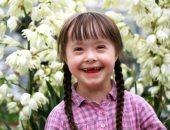 لو طفلك عنده متلازمة داون.. حاجات مهمة لازم تعرفيها عنه
