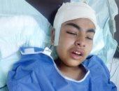 بعد سقوط الديسك على رأس تلميذ.. والده يطالب بالتحقيق فى الحادث