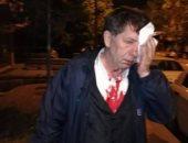 بلطجية أردوغان.. ملثمون يعتدون على صحفى معارض للنظام التركى
