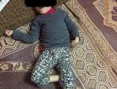 قارئ يستغيث لعلاج ابنته من الشلل الدماغى على نفقة الدولة