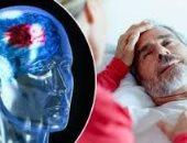 عقار جديد يساعد فى الحفاظ على خلايا الدماغ لفترة بعد السكتة الدماغية