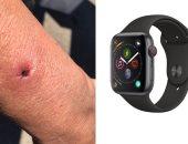 امرأة تصاب بحرق فى ذراعها بسبب بطارية ساعة أبل Apple 3 Watch