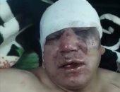 المليشيات تحكم طرابلس.. طييب ليبى يتعرض لاعتداء وحشى على يد مسلحين