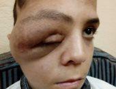 """صور.. طفل بالشرقية يعانى لإصابته بورم فى العين.. ووالده: """"قلبى بيتقطع عليه"""""""