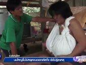 صور.. امرأة تايلاندية تثير حيرة الأطباء.. ثديها يتضخم منذ 9 أشهر