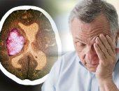 كيف تعرف أن شخصاً ما مصاباً بالسكتة الدماغية وإزاى تنقذه؟