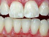 بالشاى الأخضر والزيوت الطبيعية.. 3 طرق هتساعدك فى التخلص من بقع الأسنان البيضاء
