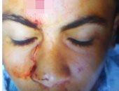 """عاطل يعتدى على طالب ثانوى ويصيبه بـ""""عاهة مستديمة"""" بدمياط"""