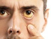 العين قد تصاب بالسرطان.. اعرف أكثر عن المرض