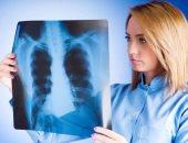 ما هو سرطان الرئة ذو الخلايا الصغيرة.. اعرف كل ما يتعلق بالمرض