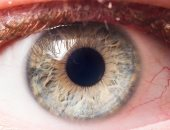 قريباً.. تشخيص الزهايمر عن طريق عدد الأوعية الدموية فى العيون