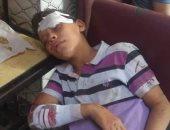 بيطرى القليوبية: حملة ضد الكلاب الضالة بشبرا الخيمة بعد هجومها على طفل