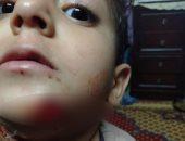الكلاب الضالة تهاجم طفلا وتحدث به إصابات بالغة بمدينة السلام
