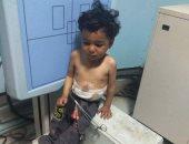 """فيديو وصور.. مأساة الطفل """"عمر"""" يتغذى ويتنفس من فتحتين بالجسم.. ويناشد بعلاجه"""