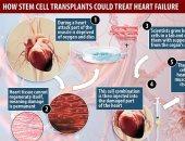 علاج ثورى لقصور القلب بتجديد الأنسجة الميتة باستخدام الخلايا الجذعية