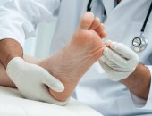 4 نصائح لحماية قدميك من الأمراض الجلدية منها نقعها بالماء والملح