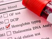 لو مستوى الهيموجلوبين فى الدم عالى.. فأنت عُرضة للإصابة بالخرف