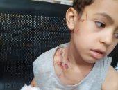 فيديو وصور ..هجوم للكلاب الشرسة على الأطفال بمدينة العبور