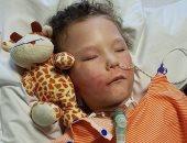 صور .. مرض نادر يصيب طفلا يفقده عمل معظم وظائف الجسم ببريطانيا