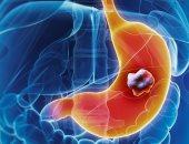اكتشاف حلزون بحر يحتوى على مركب طبيعي يقلل من مخاطر الإصابة بالسرطان
