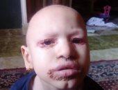 صور.. مأساة طفلة بالغربية تعانى من مرض غير معروف يسبب لها تشوهات