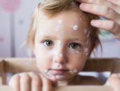 5 أسباب وراء الطفح الجلدى عند الأطفال