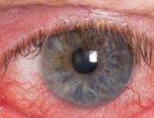 التهاب العنبية مرض خطير قد يؤدى لفقدان البصر.. تعرف على أسبابه
