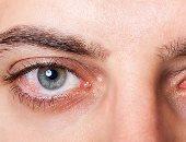 7 إسعافات أولية عاجلة فى حالة تطاير مادة كيميائية داخل العين