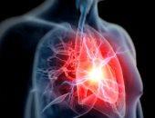 دراسة: التحكم فى ضغط الدم والكولسترول يقلل الإصابة بالنوبات القلبية بنسبة 80%