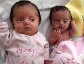 """""""توأمتان من زجاج"""".. طفلتان تحدتا الأطباء بعد إصابتهما بمرض نادر.. اعرف القصة"""