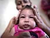 تأخر النمو الحركى والمعرفى لأطفال تعرضوا لفيروس زيكا فى الرحم