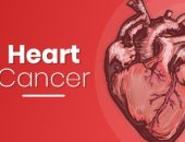 ما لا تعرفه عن أورام القلب.. الأسباب والأعراض والمضاعفات وطرق التشخيص
