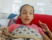"""روان ضحية  """"التنمر"""" بالإسكندرية قصة طالبة أصيبت بالشلل بسبب اعتداء بدنى ونفسى"""