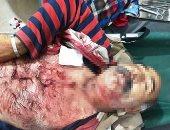 استشهاد سورى وإصابة 3 آخرين فى قصف مدفعى تركى على قرية الدرباسية