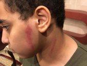 قارئ يشكو من تعرض نجله للضرب على يد مدرس بمدرسة خاصة فى الزيتون
