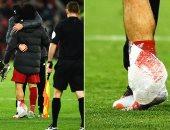 """ليفربول ضد مان سيتي.. محمد صلاح يقلق جماهير الريدز بعد مباراة السيتي """"صور"""""""