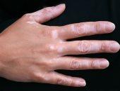 5 عوامل تزيد من خطر الإصابة بالبهاق.. تعرف عليها