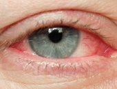 علاج العين بعد دخول حشرة أو جسم غريب.. لا تستخدم قطنة ولا تفرك عينيك