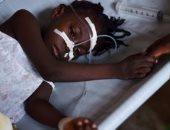 """""""أوتشا"""": 11 وفاة بحمى الوادى المتصدع فى السودان"""