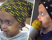 """والدة زين الطفل المصاب بـ""""الشيخوخة المبكرة"""": الكل بيحبه وعنده كاريزما قوية"""