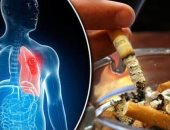 احذر.. التدخين يسبب تصلب الشرايين ويزيد من خطر الإصابة بكورونا