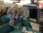 """نجاح أول جراحة فى السعودية بواسطة """"الروبوت"""""""