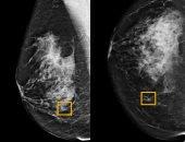 أول صورة لاكتشاف سرطان داخل أنسجة ثدى بواسطة الذكاء الاصطناعى