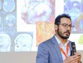 نجاح استئصال بؤرة صرعية بالمخ والمريضة مستيقظة بجامعة الزقازيق