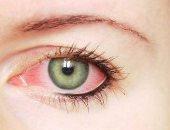العين البيضاء.. التهاب خطير يصيب العيون.. ماهى أعراضه؟