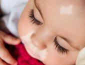 اسباب البهاق عند الاطفال وراثة أم اضطراب مناعة ذاتية
